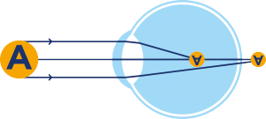 Opération laser astigmatie