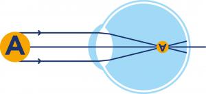Opération laser de la myopie