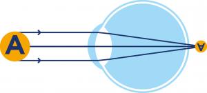 Opération laser hypermétropie